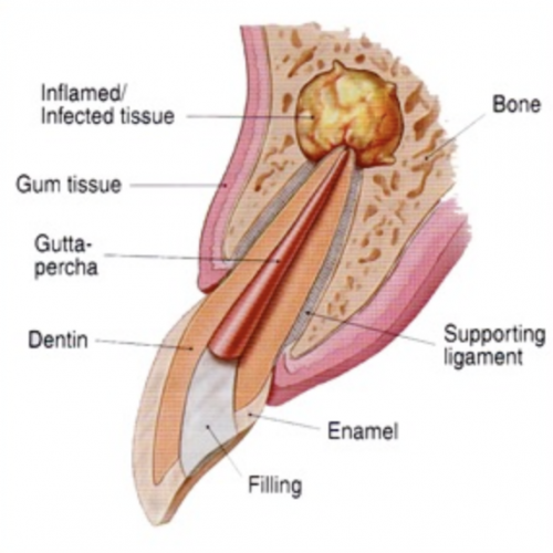 kalamazoo-apicoectomy-1