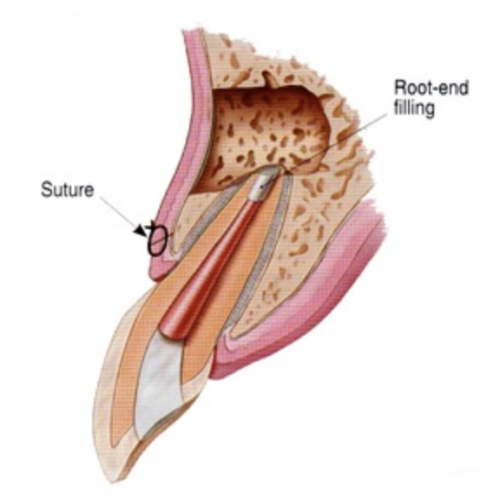 kalamazoo-apicoectomy-2