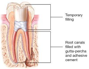 root canal 3 kalamazoo