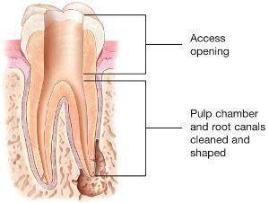 root canal kalamazoo